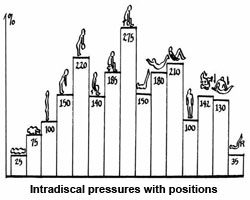 lumbar intra discal pressure 1 - Do Crunches and Sit-ups Get A Bad Rap?