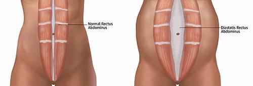DiastasisRectusAbd SM 1 - How To Help This Common Core Problem